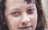 axn-weirdest_illnesses-2