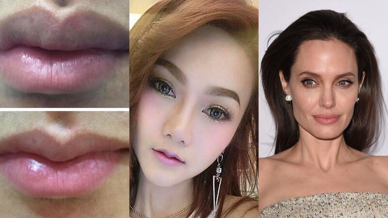 axn-lip-surgery-1600x900